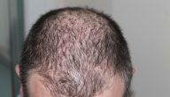 هل البشرة الدهنية تسبب تساقط الشعر