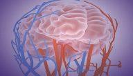 هل نزيف الدماغ يسبب الوفاة