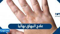 علاج البهاق نهائيا … علاج البهاق بالاعشاب واعراضه واسبابه