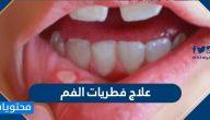 علاج فطريات الفم … الطبية والمنزلية وأسباب الإصابة بها وأعراضها