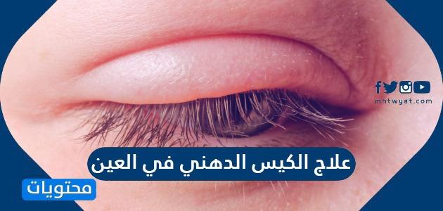 علاج الكيس الدهني في العين.. أسباب وجود كيس دهني في العين