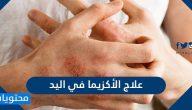 علاج الأكزيما في اليد .. علاج الأكزيما بالأعشاب