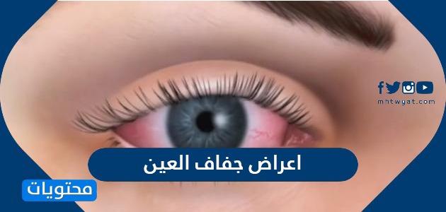 اعراض جفاف العين واسبابها وطرق علاجها بالتفصيل