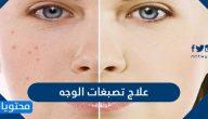 علاج تصبغات الوجه وأهم أسباب تصبغات الوجه