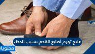 علاج تورم أصابع القدم بسبب الحذاء